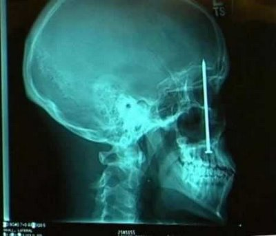 Radiografías fuera de lo común